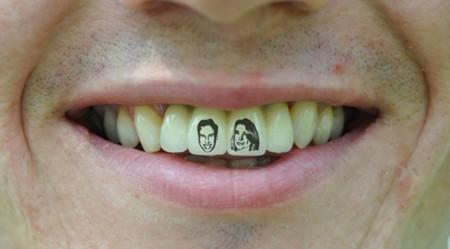 Barmy Baz Franks wytatuował sobie portrety pary królewskiej na zębach