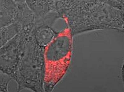 Nanosensory wstrzyknięte pod skórę