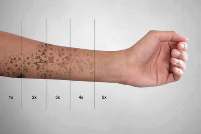 Laser rozbijający cząsteczki pigmentu