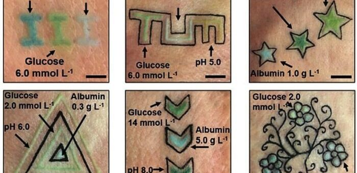 Tatuaż dla diabetyków. Zmierzy poziom glukozy